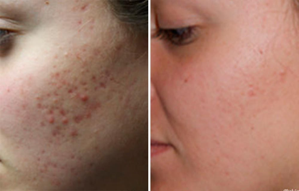 How to get rid of acne scars with turmeric Turmeric for acne scars