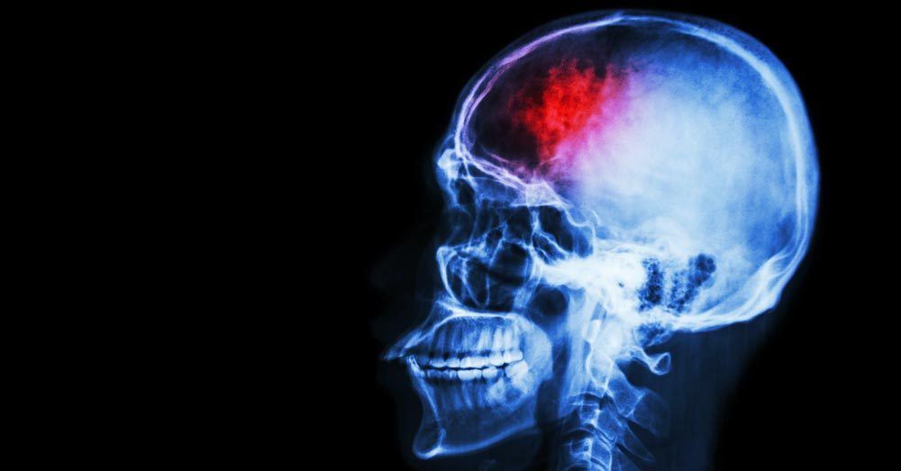 7-signs-of-stroke-you-might-be-ignoring
