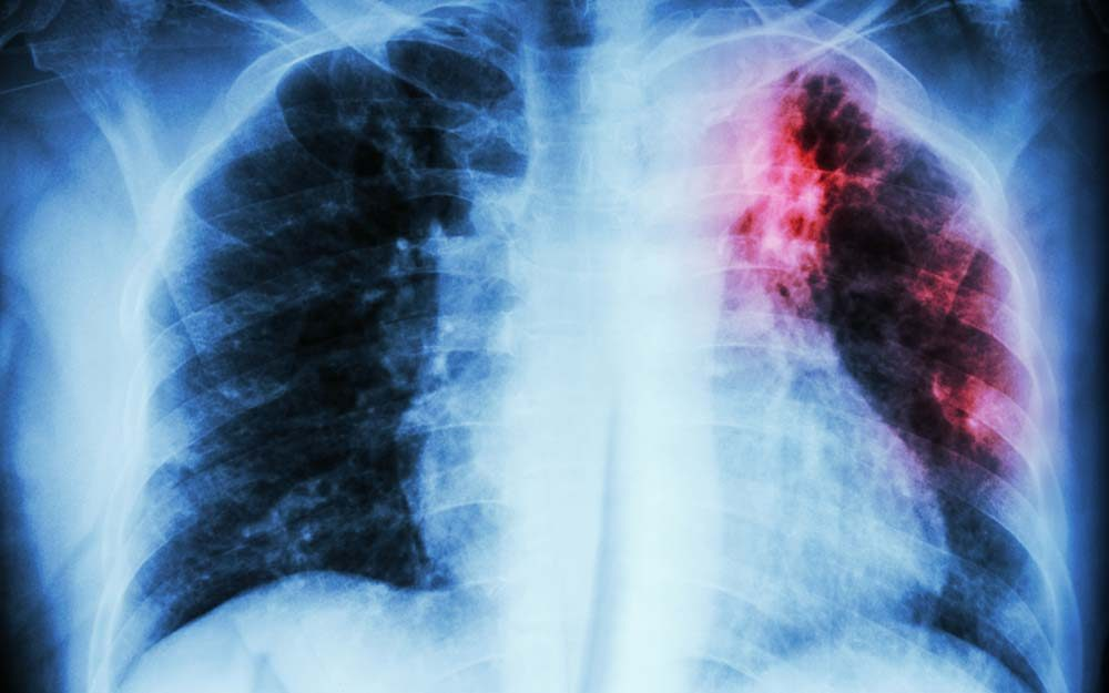 signs-your-lungs-could-be-in-trouble