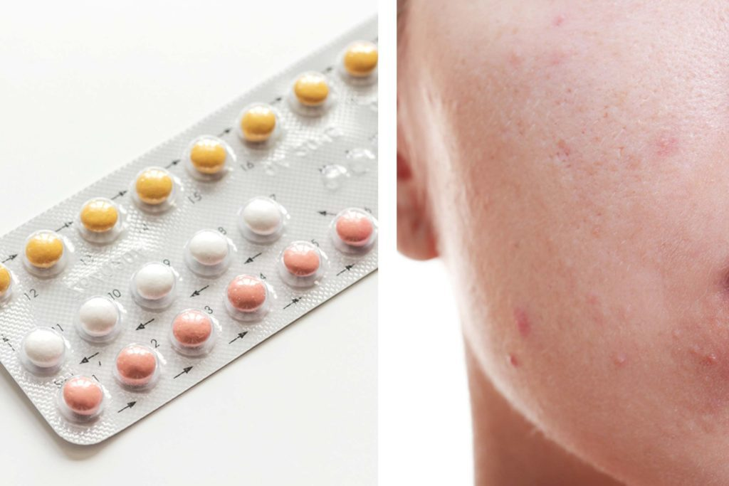 01 does birth control help or hurt acne 557823631 279photo studio africa studio 1024x683