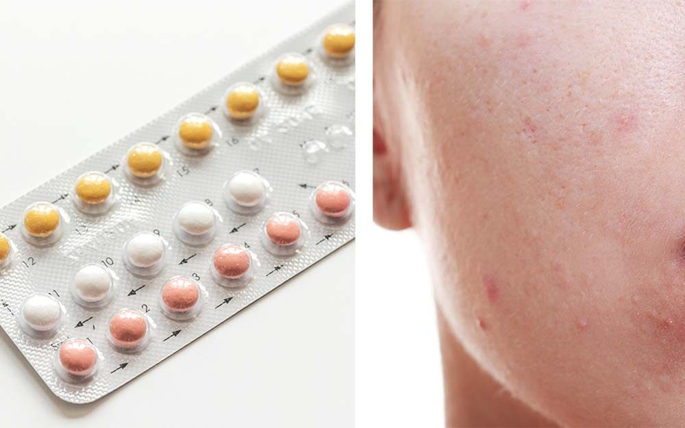 Does Birth Control Help or Hurt Acne? A Dermatologist Explains | Reader's Digest