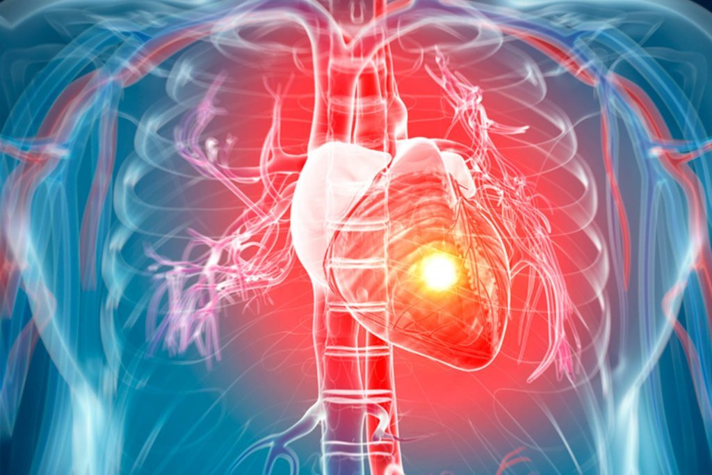 Your-Blood-Type-May-Be-Increasing-Your-Chances-of-a-Heart-Attack,-Study-Says