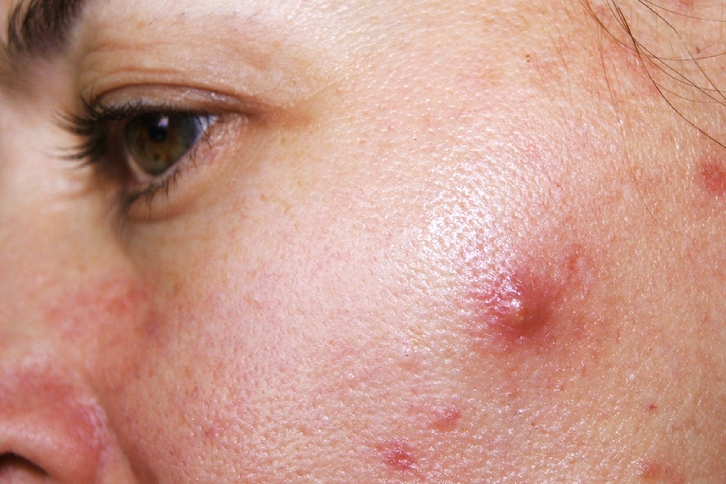 How To Get Rid of Cystic Acne, Sometimes Overnight (Really