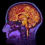 5 People Whose Brain Injuries Gave Them New Abilities