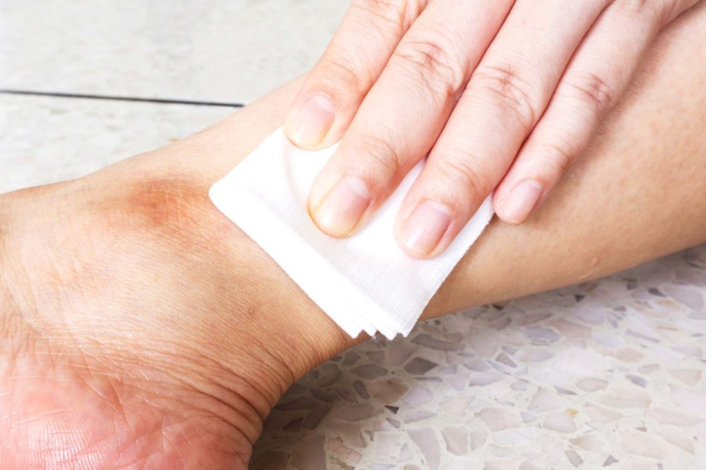 Old Wives' Tale Injury Treatments That Are Dead Wrong | Reader's Digest