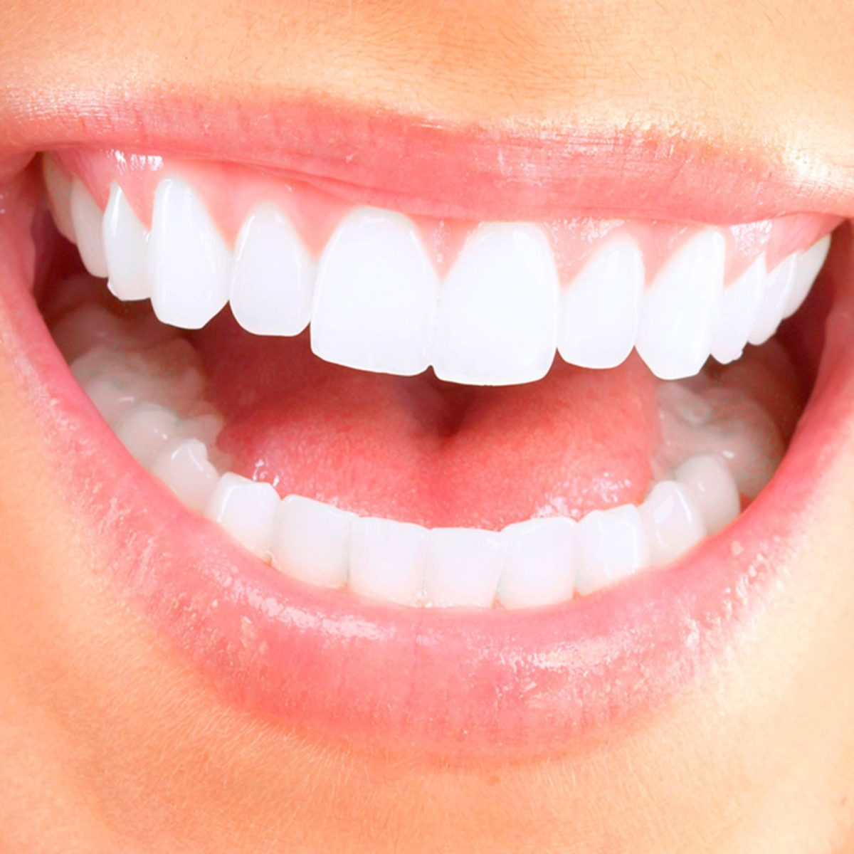 White Gums After Tooth Extraction