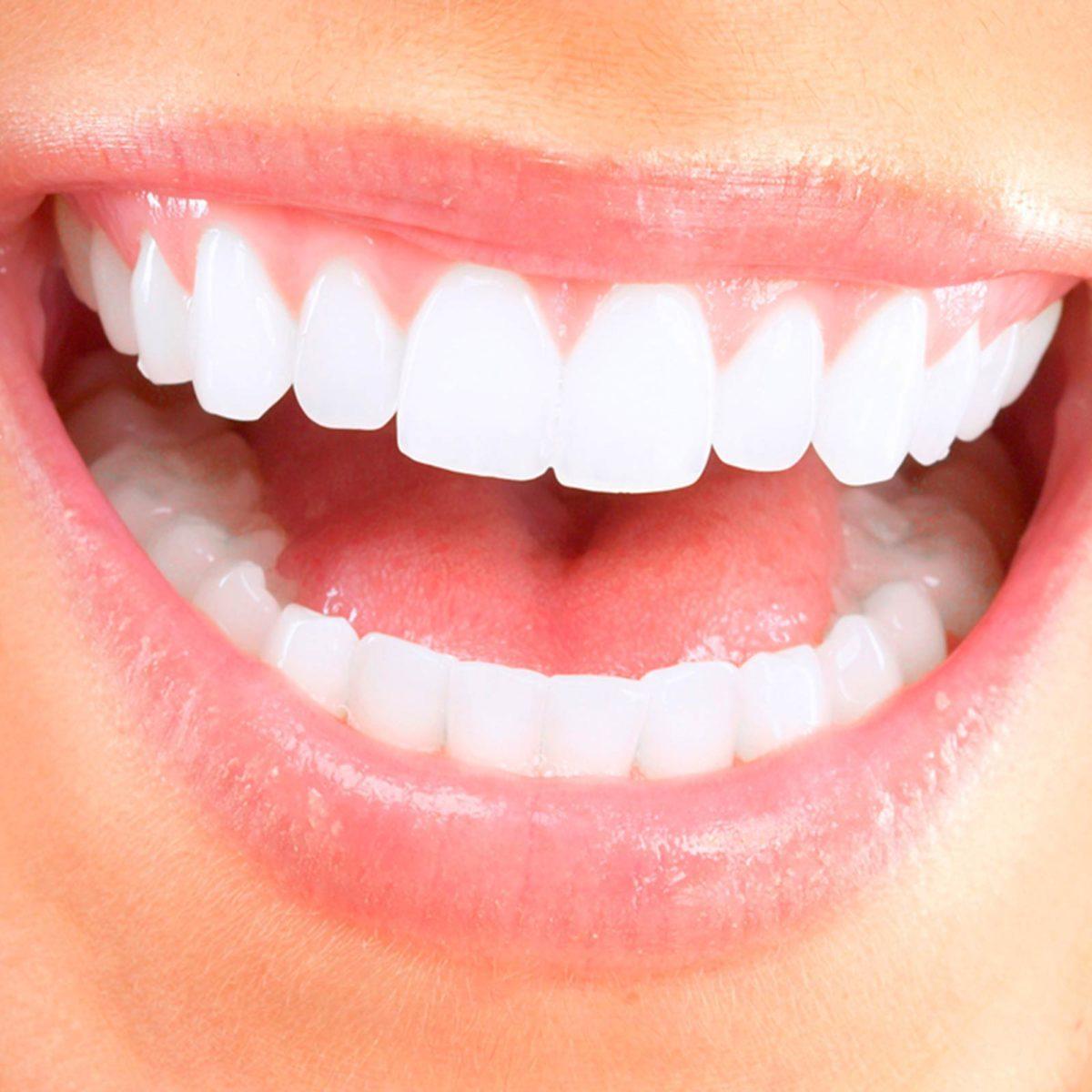 Dental Problems: Body Diseases Teeth Reveal | Reader's Digest