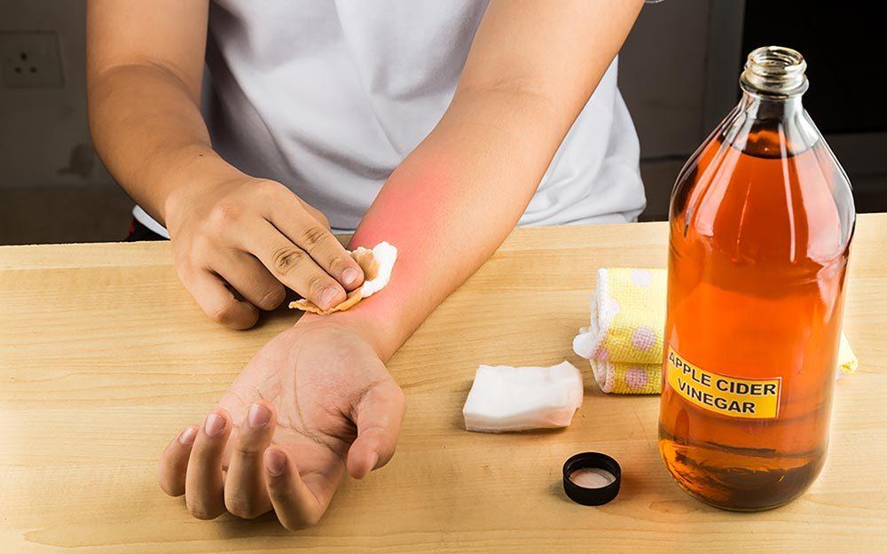 11 Sunburn Remedies That Actually Work