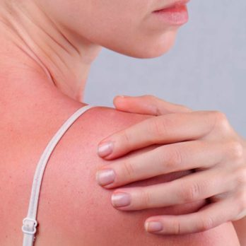 6 Silent Signs Your Sunburn Is Actually Sun Poisoning
