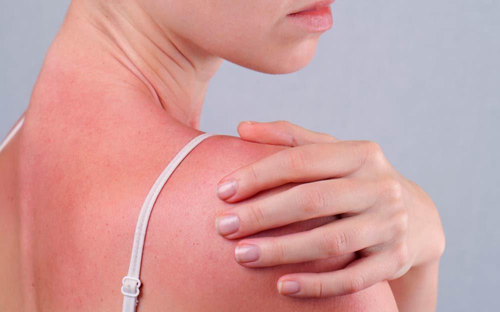 d646fbd197080 Sun Poisoning Symptoms: Silent Signs of Sun Poisoning | Reader's Digest