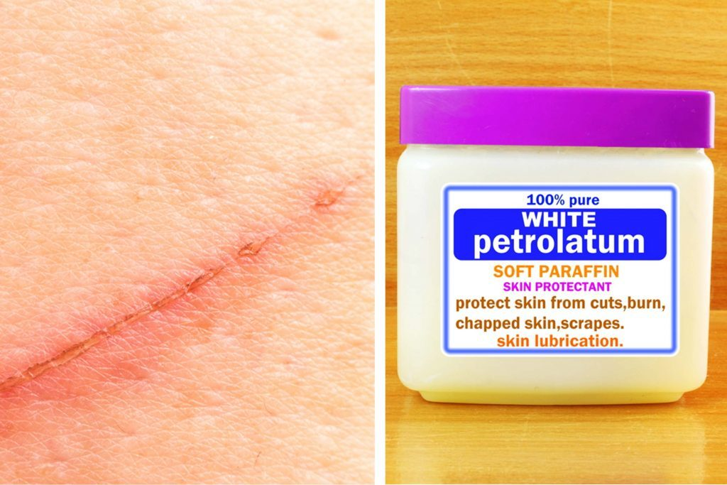 scar on skin next to a jar of petrolatum jelly