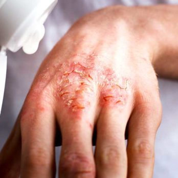 After Suffering from Eczema for Over 20 Years, This Is What Finally Worked for Me