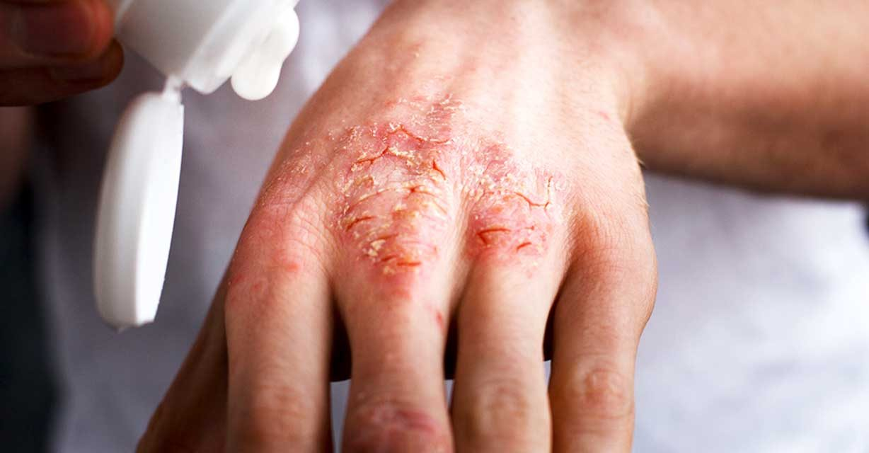 -Finally-Found-the-Miracle-Trick-That-Cured-My-Eczema