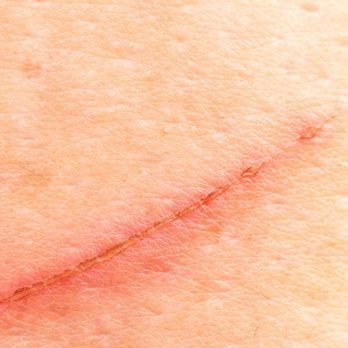 The Secret to Preventing Scars Is This One Ingredient (Hint: It's Not Neosporin!)