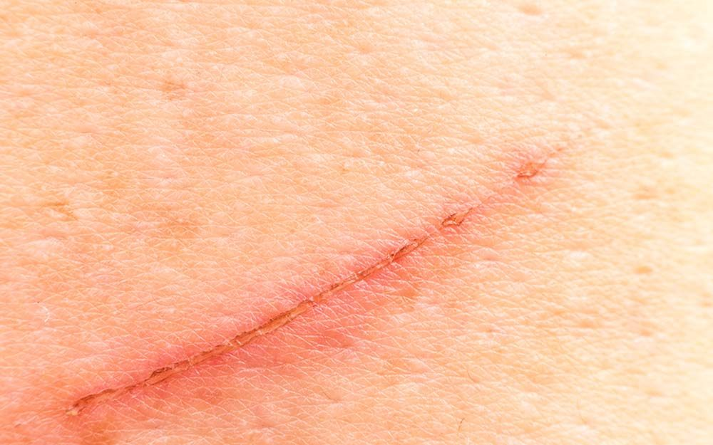 prevent scars the secret ingredient you need for scar prevention