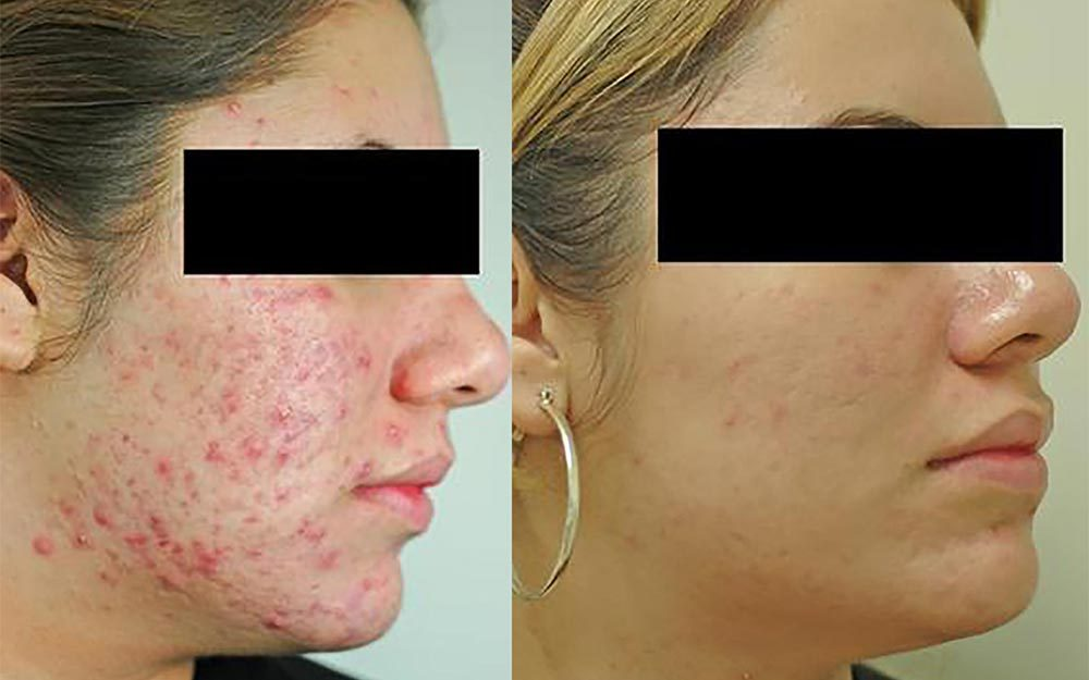 Before And After Photos Of Skin And Acne Treatments