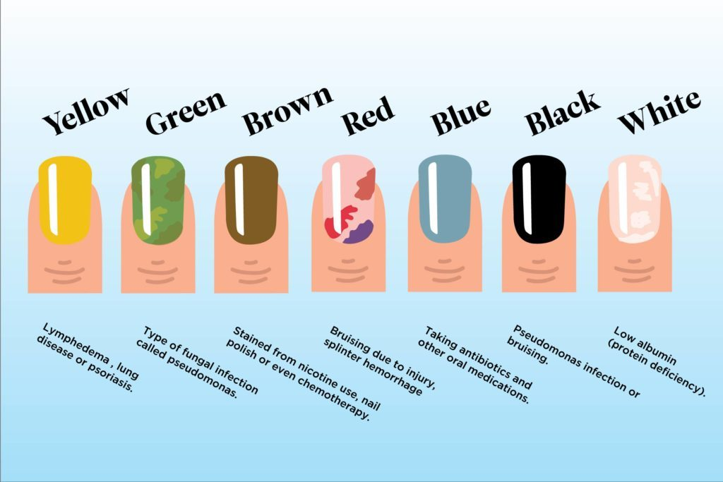 What The Color Of Your Nails Says About