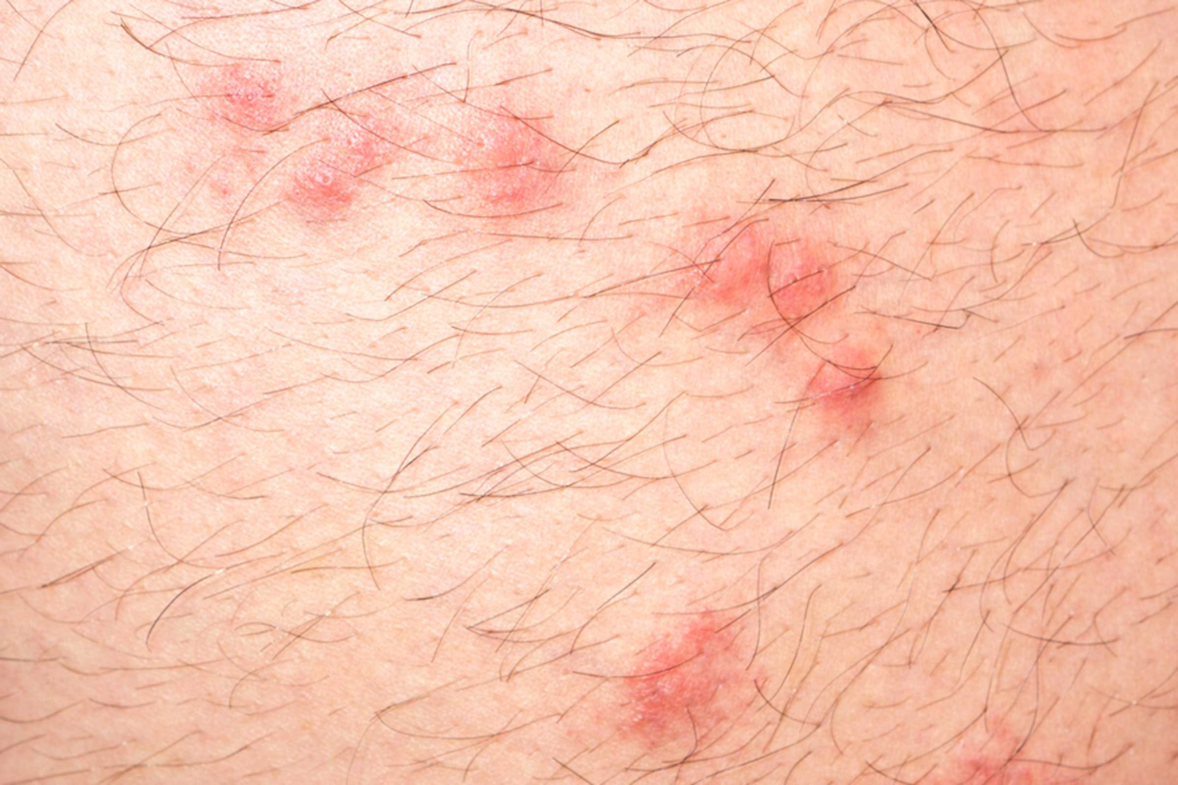 Identifying Bug Bites: Here's What Bit You | Reader's Digest