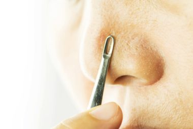 How To Remove Blackheads From Nose Ayurveda   Avishan Meghwar
