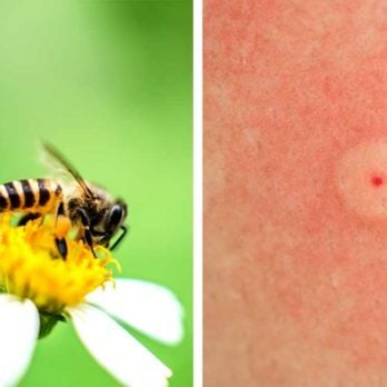 Identifying Bug Bites: Here's How to Figure Out What Bit You