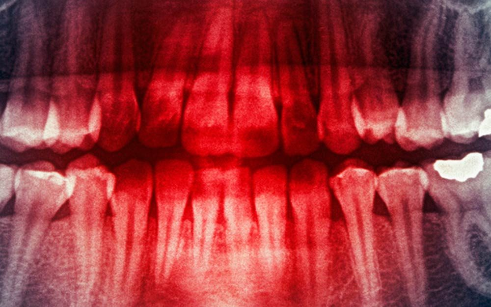 Yes, You Can Lose Teeth Due to Stress—Here's How| Reader's ...
