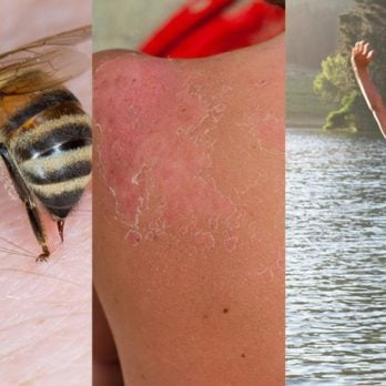 Quick Fixes for Bee Stings, Bug Bites, Sunburns, and Other Summer Woes