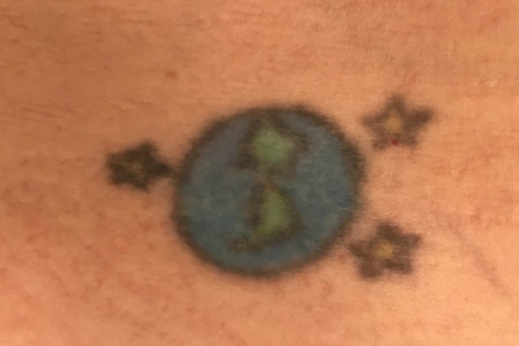 01-I-Tried-the-New-Patch-to-Remove-a-Regrettable-Tattoo-Courtesy-Grace-Spencer