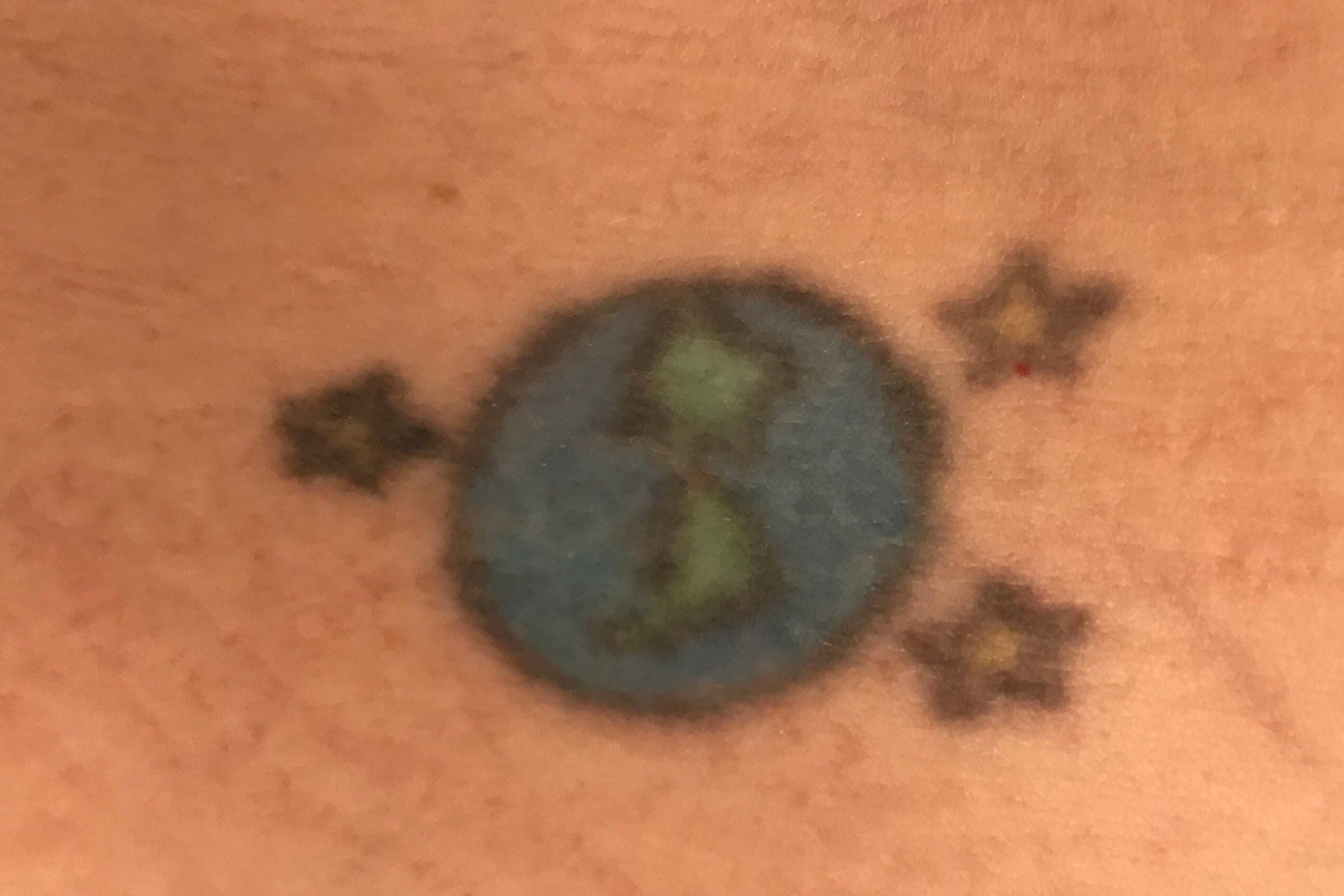 Describe PFD Patch: I Tried a Tattoo Removal Patch | Reader\'s Digest