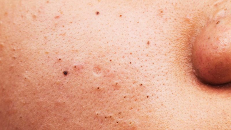 -The-Blackhead-Removal-Trick-The-Internet-Can't-Stop-Talking-About