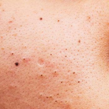 There's a New Way to Remove Blackheads—and Beauty Pros Can't Stop Talking About It