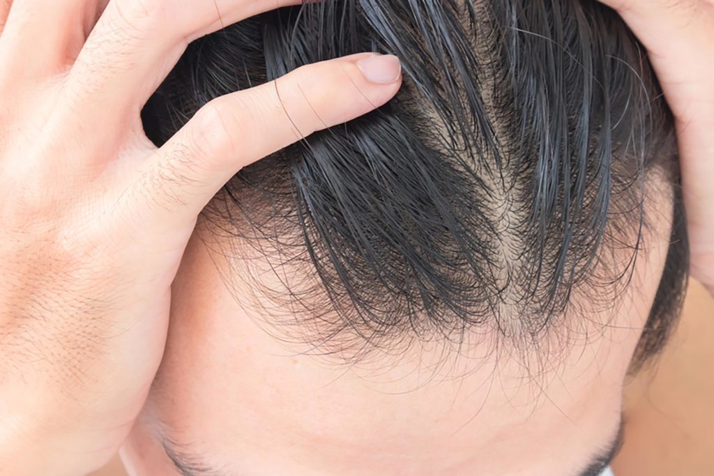 Thinning Hair - treatment at Advanced Dermatology & Skin Cancer Center, PLLC
