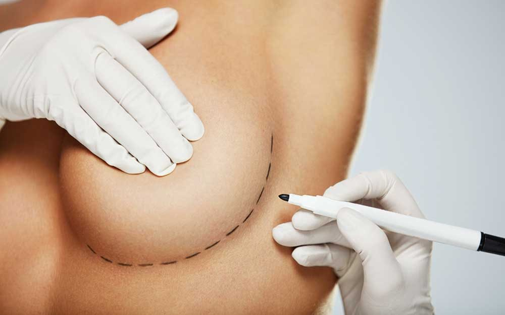 Can you breast feed after breast reduction surgery