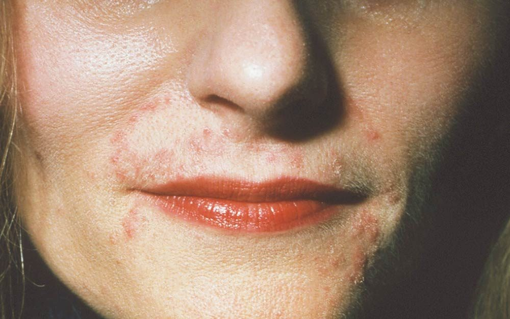 Skin Conditions That Look Like Acne Readers Digest
