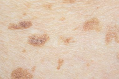 Brown spots on breast