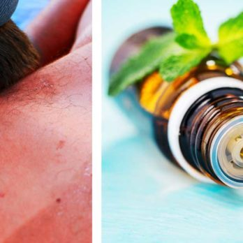 This Is How You Can Use Essential Oils to Treat a Sunburn