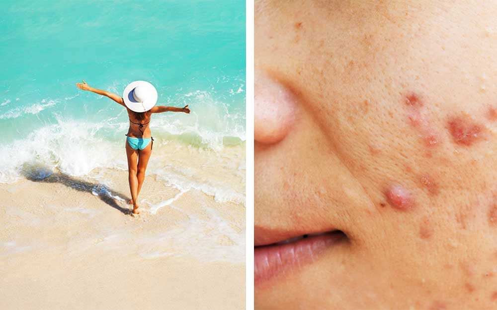 Why-Acne-Is-Worse-in-the-Summer—And-How-to-Get-Rid-of-It