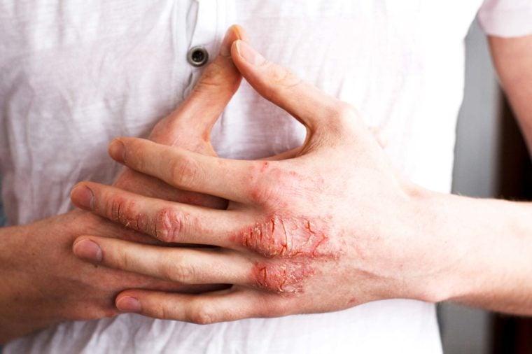 Eczema Treatments Dermatologists Use on Themselves