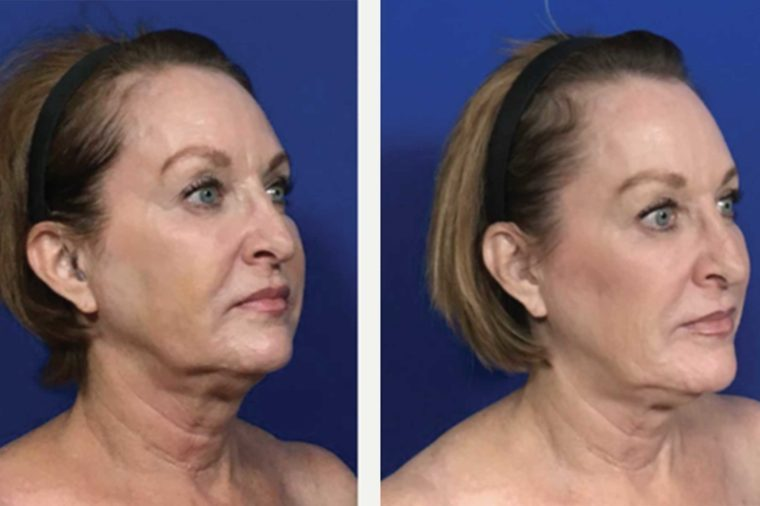 Are Thread-Lifts the New Face-Lift? What You Need to Know About This New Procedure