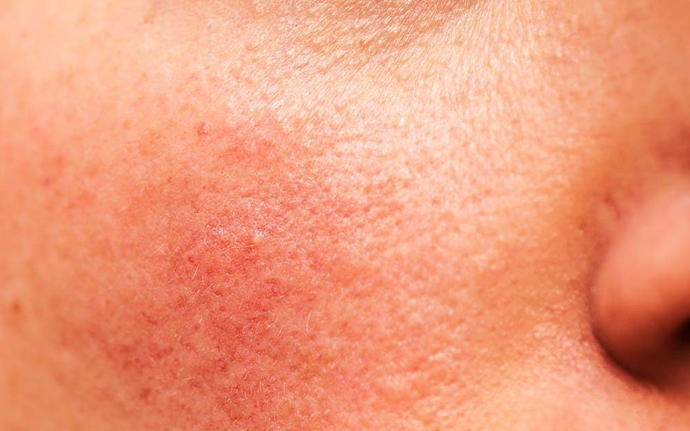 Skin Condition Symptoms - Bing images