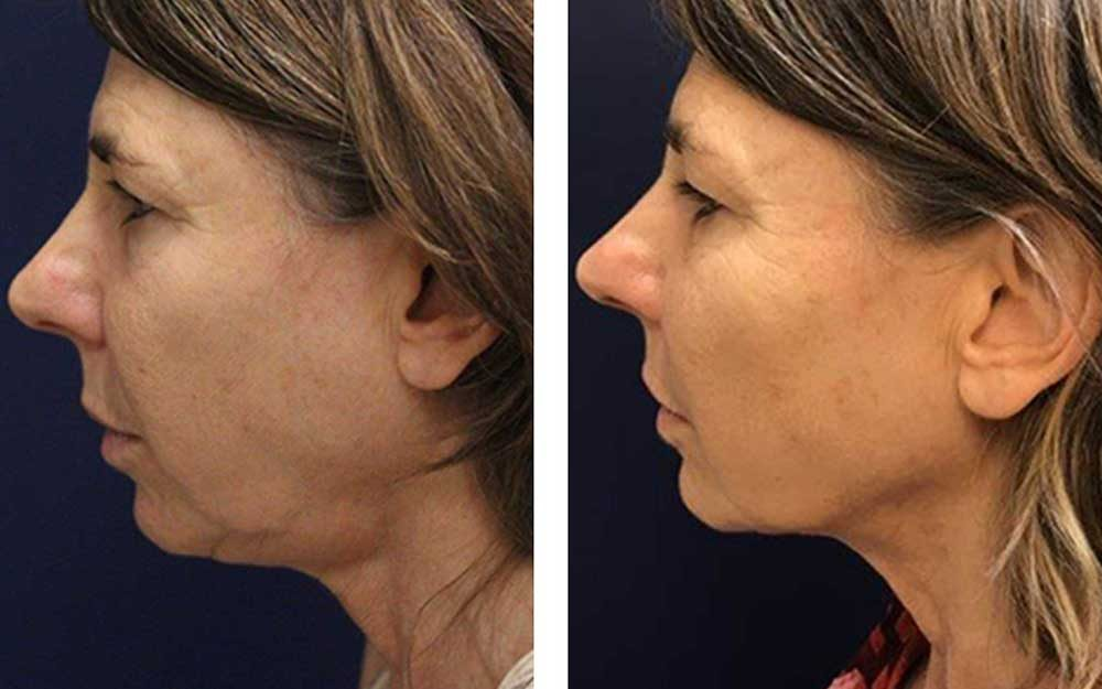 Are Thread-Lifts the New Face-Lift? What You Need to Know | Reader's