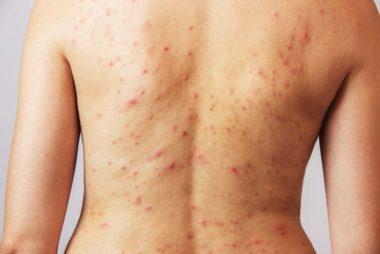 Topical ivermectin in scabies