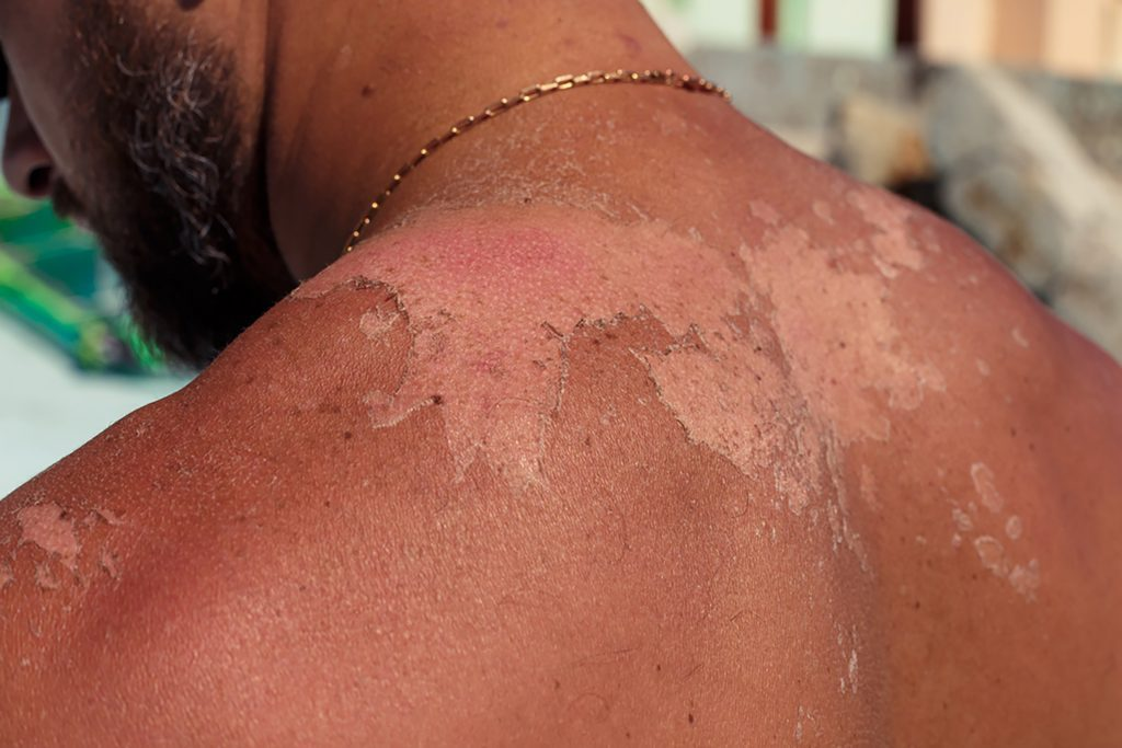 06-Here's-the-Deal-with-Those-Weird-White-Spots-on-Your-Skin_673240807-sutulastock