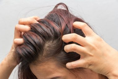 Home Remedies For Dandruff That Really Work