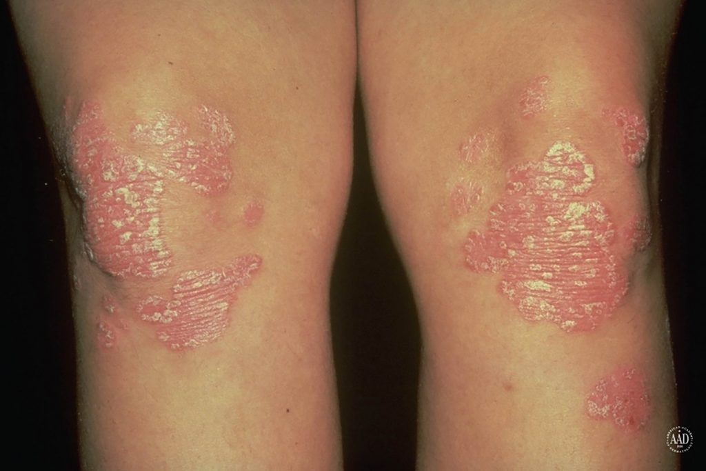 dermatologic disease or condition medical report Dermatologic signs of systemic disease online medical reference - from diagnosis through treatment options co-authored by lisa m grandinetti and kenneth j tomecki of the cleveland clinic.
