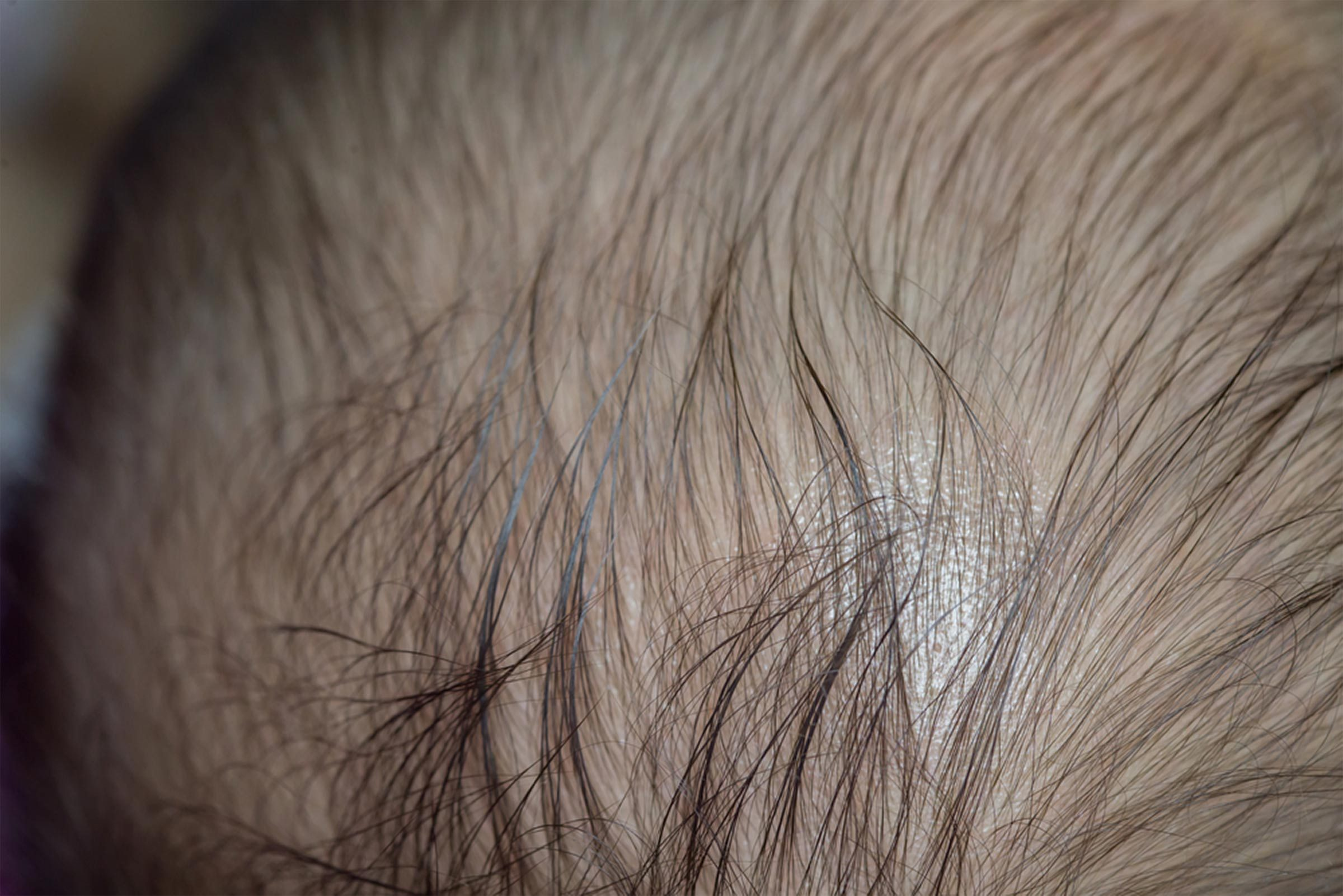 21 Reasons for Your Itchy Scalp (Besides Head Lice) | Reader's Digest