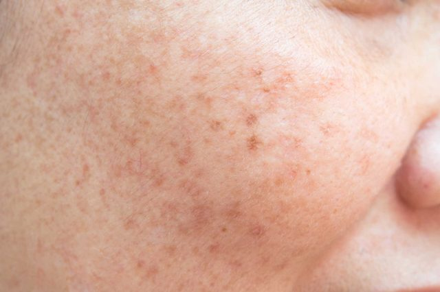 19-freckles-Things Everyone Should Do at Least Once Before Summer's Over_609185975-srisakorn-wonglakorn