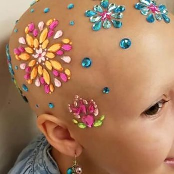 This Little Girl Is Embracing Her Baldness in the Most Beautiful Way