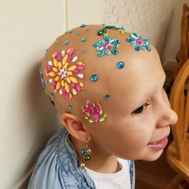 September-2017-HEROES-bald-is-beautiful-courtesy-Daniella-wride