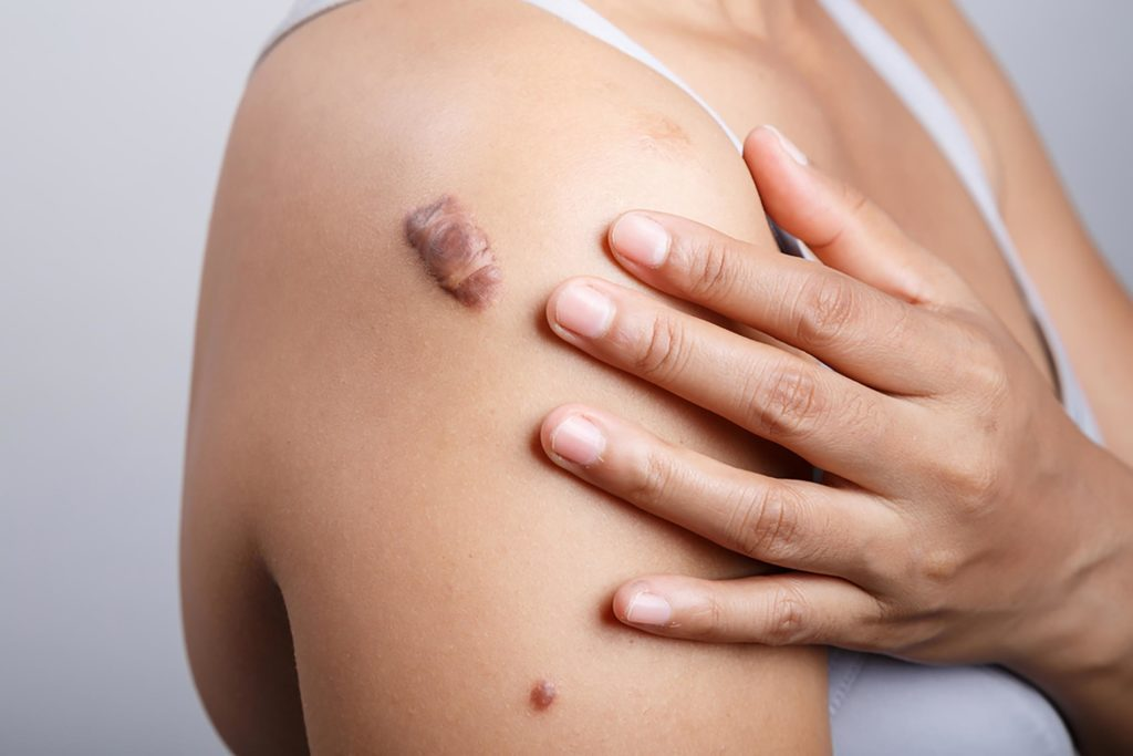 the mystery of those lumps and bumps on skin explained reader s