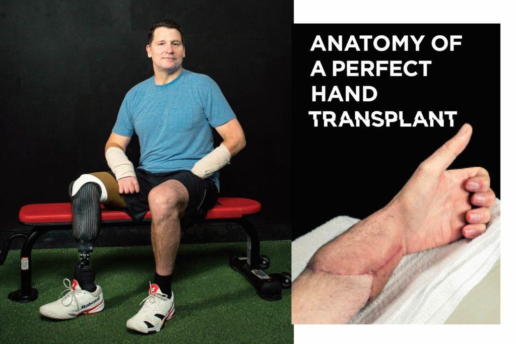 october-2017-03-FEA-Hand-Transplant